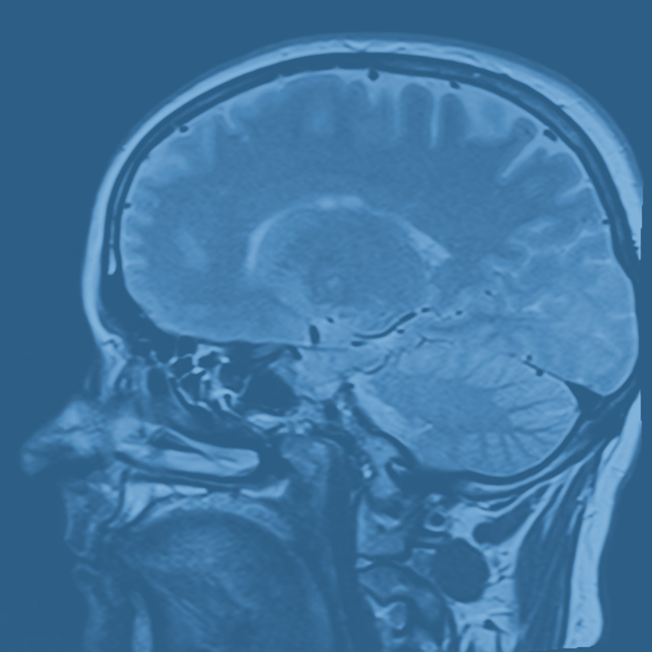 Denver Personal Injury Attorney x ray brain injury - Videos Photo